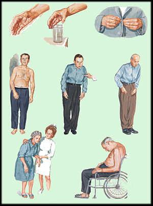 Parkinson-Disease2