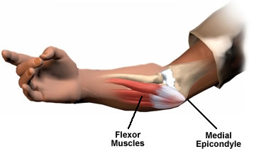 medial-epicondylitis-golfers-elbow