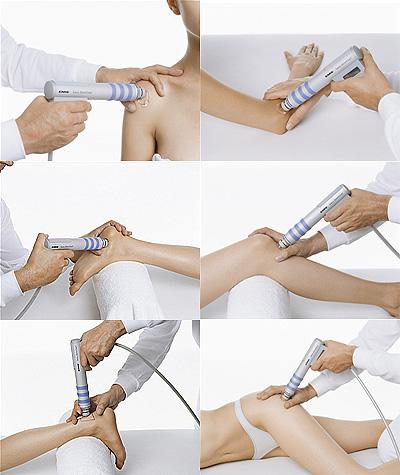 shockwave-therapy-shoulder-tendinopathy-tennis-elbowplantar-fasciitis-patellar-tendinopathy-achilles-tendinopathy-trochanteric-bursitis