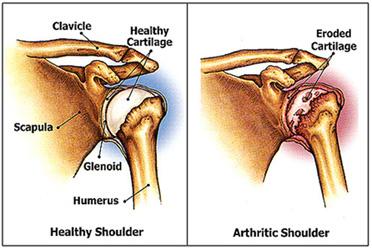 shoulder-joint