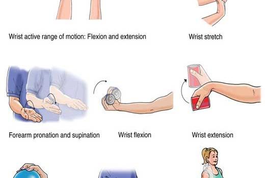 تمرین درمانی درد آرنج