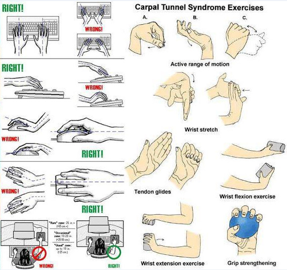 CARPAL-TUNNEL-SYNDROME