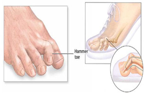 Hammer-toes-