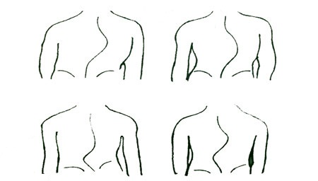 Types-of-Scoliosis-elmevarzesh