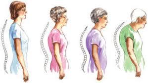 aging_posture
