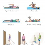 تمرین درمانی لگن
