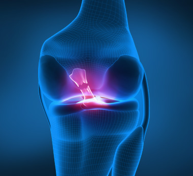 lateral_cruciate_lateral_4c