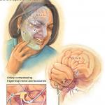 درد عصب سه قلو